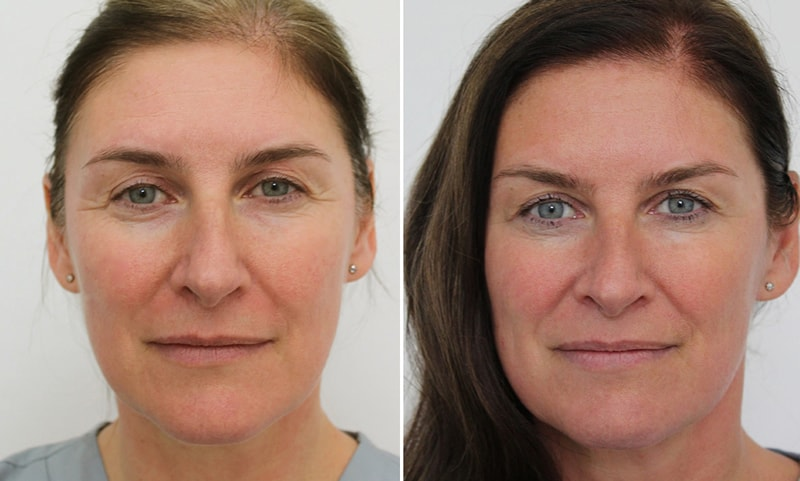 facial-aesthetics-upper-face-before-after