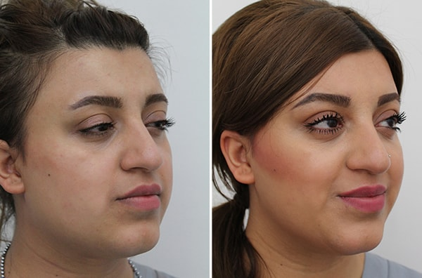 facial-slimming-before-after