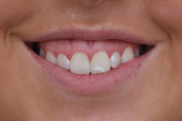 gummy-smile-before
