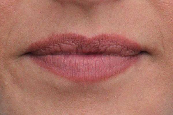 lip-enhancement-before